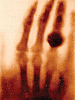 Exhibit 1. Röntgen's  First X-Ray Image